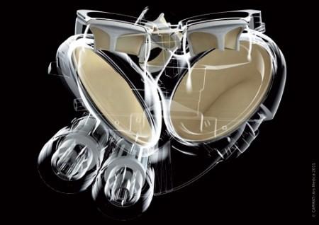 Имплантант сердца