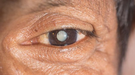 eye-drop-cataract@2x