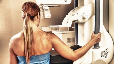 mamogram-1