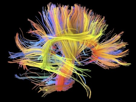 connectome-wiring-diagram-human-brain-3