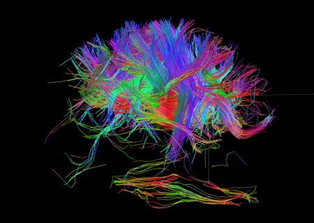 connectome-wiring-diagram-human-brain-4