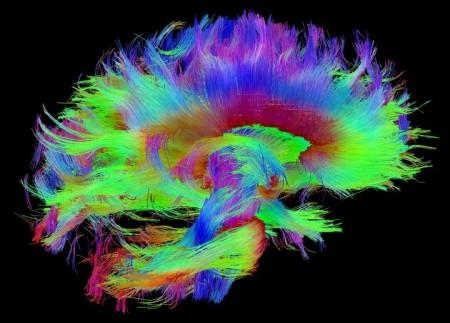 connectome-wiring-diagram-human-brain-5