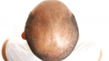 enzyme-baldness-2