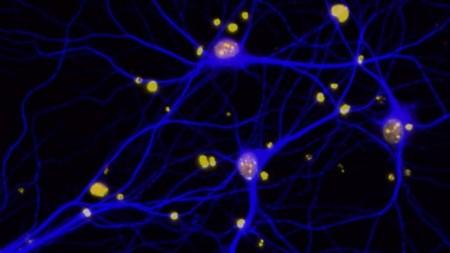 Обнаружен белок отвечающий за воспоминания