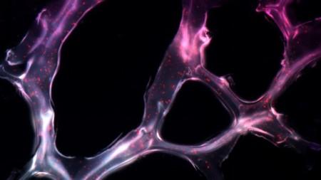 Ученые MIT создали гель борющийся с раком