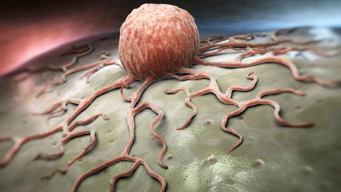 Австралийские ученые нашли безопасный способ лечения лейкоза