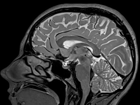 mrt-mozga
