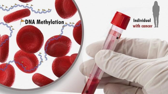 Исследователи ищут способ обнаружения рака анализом крови