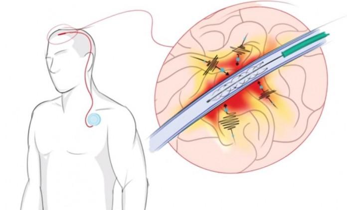 Создан имплант способный поставить на ноги парализованных