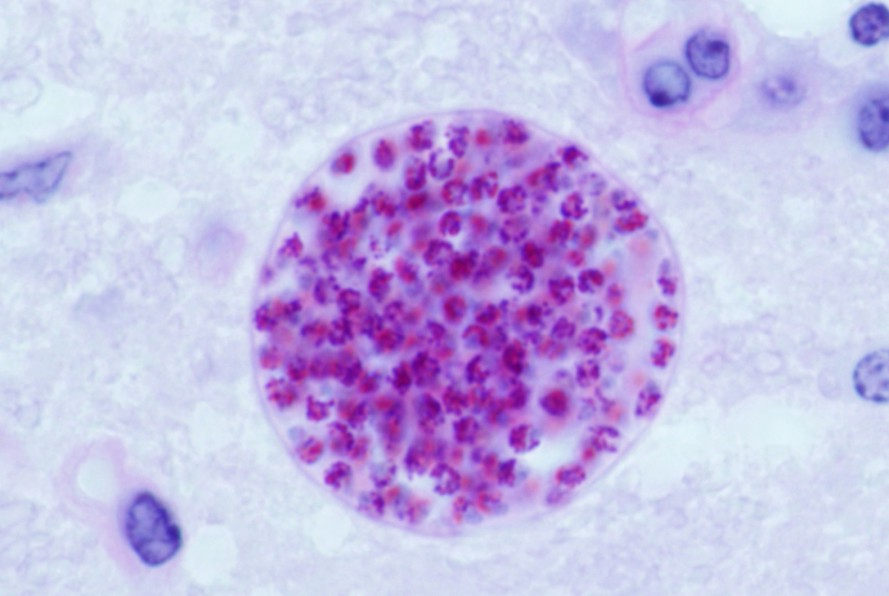 Toxoplasma-gondii-Infection-889x596