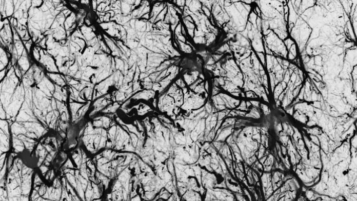 Доказано отсутствие связи между Альцгеймером и наследственностью