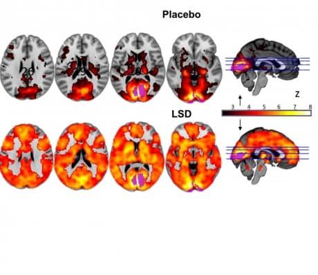 Ученые выяснили каким образом ЛСД вызывает яркие галлюцинации