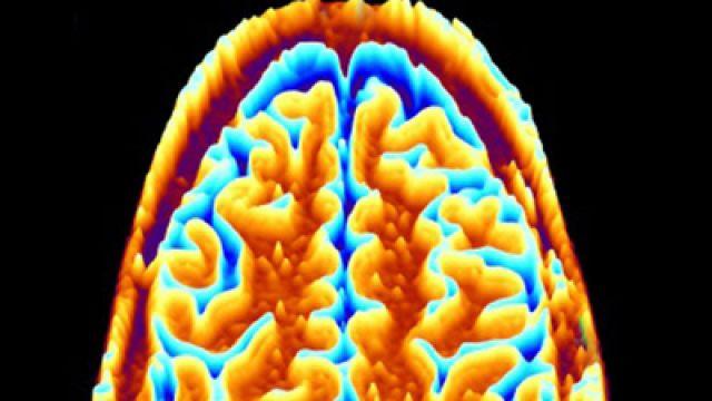 275929-brain-scan