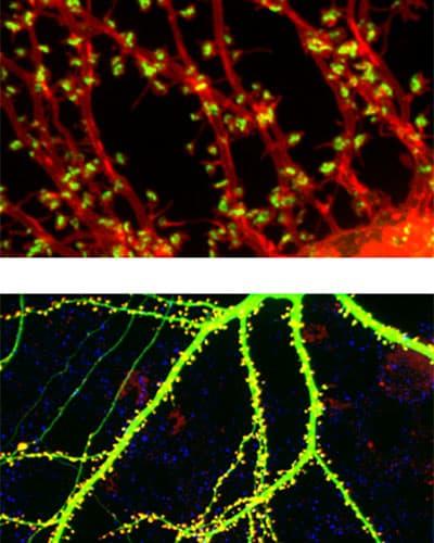 Ученые смогли определить архитектуру синапсов