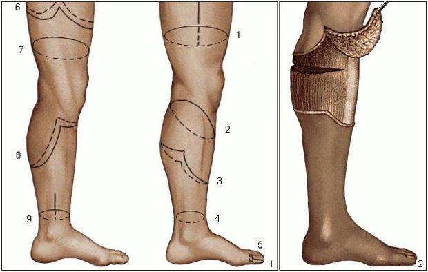 Ампутация ноги
