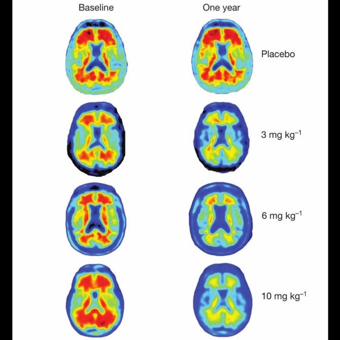 Ученые надеются на антитела в лечении болезни Альцгеймера