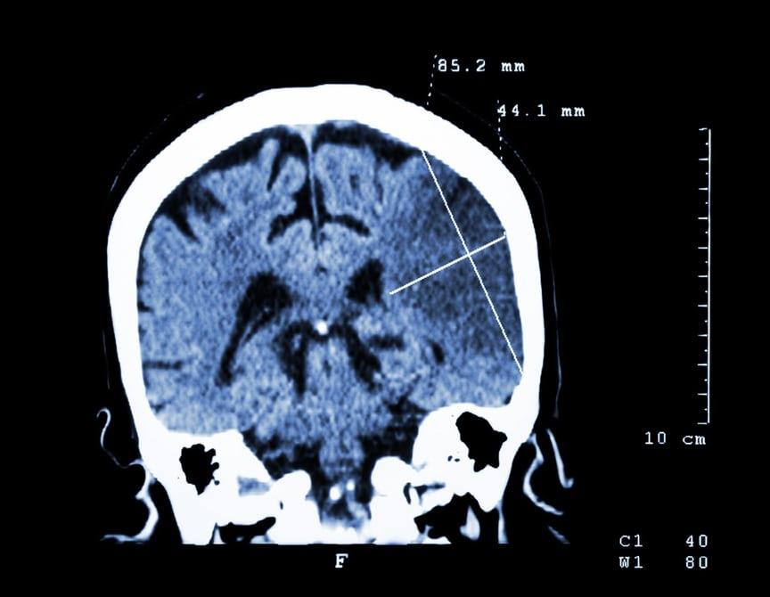 Спроектирован новый препарат для восстановления мозга после инсульта