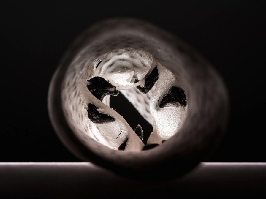 Ученые начали создавать сердечные клапаны при помощи 3D-печати