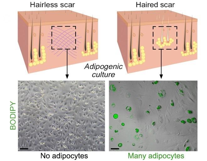 Ученые научились превращать рубцовую ткань в обычную кожу