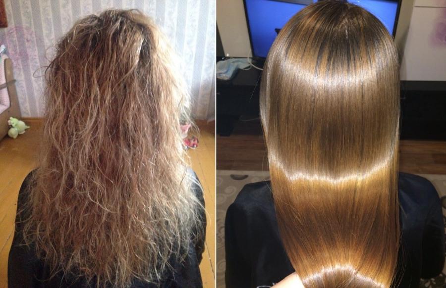 Самое лучшее средства от выпадения волос