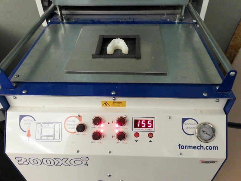 Студент исправил себе прикус, создав брекеты с помощью 3D-принтера