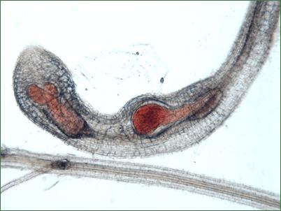 Отсутствие секса превратило червей -паразитов в машину для убийств