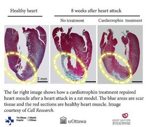 Ученые разработали новый метод лечения сердечной недостаточности