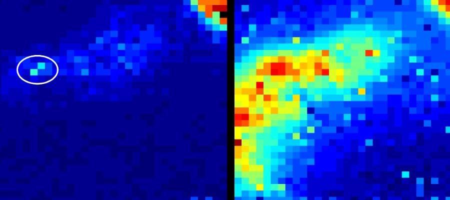 Создана фотонная камера, способная отслеживать эндоскоп в теле человека