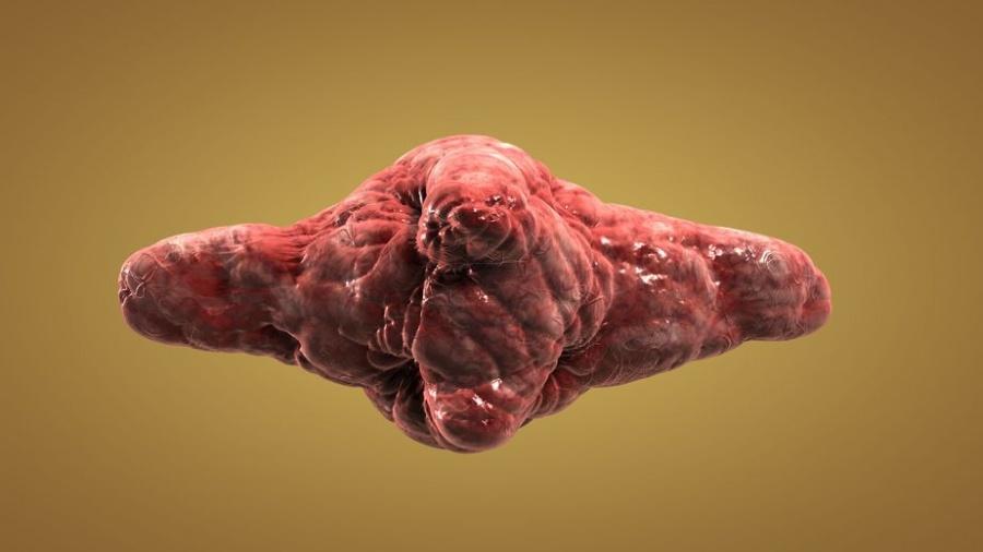 Раковые опухоли картинки